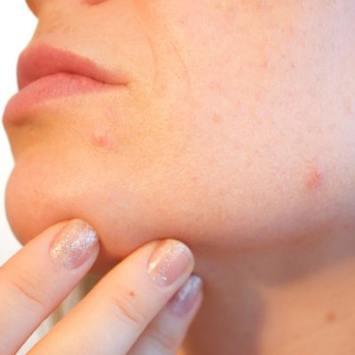 HOW TO TREAT AND IMPROVE ACNE AND BREAKOUTS